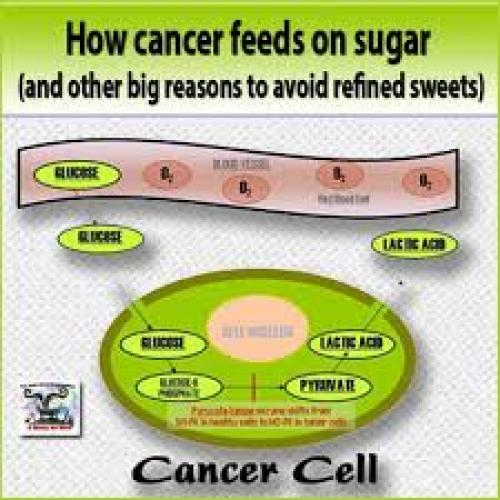 Now identified, sugar and cancer are indeed 'directly' connected