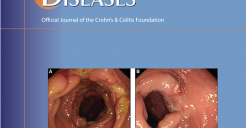 Role of Cannabis in the Management of Inflammatory Bowel Disease